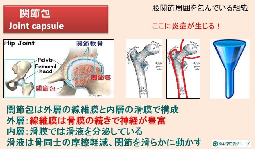 関節包の図